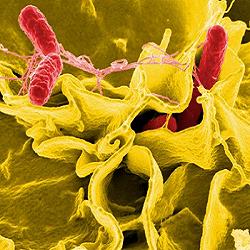 Les infections bactériennes #2